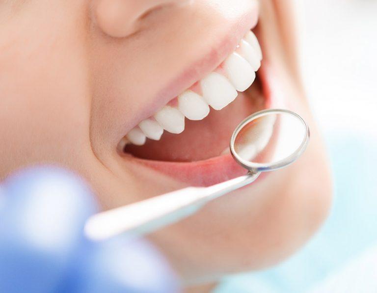 Emblanquiment dental Mollerussa