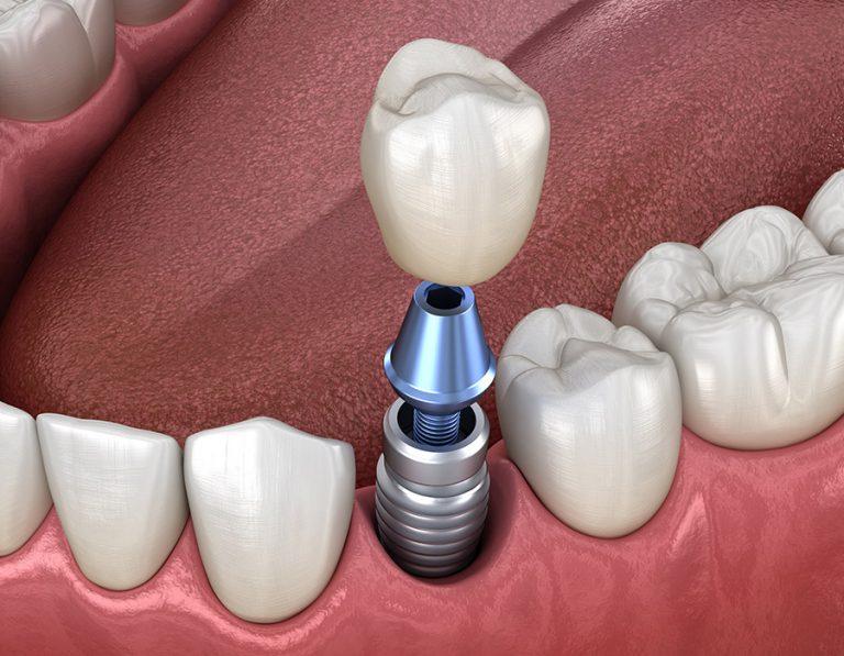 mplants-dentals-Mollerussa