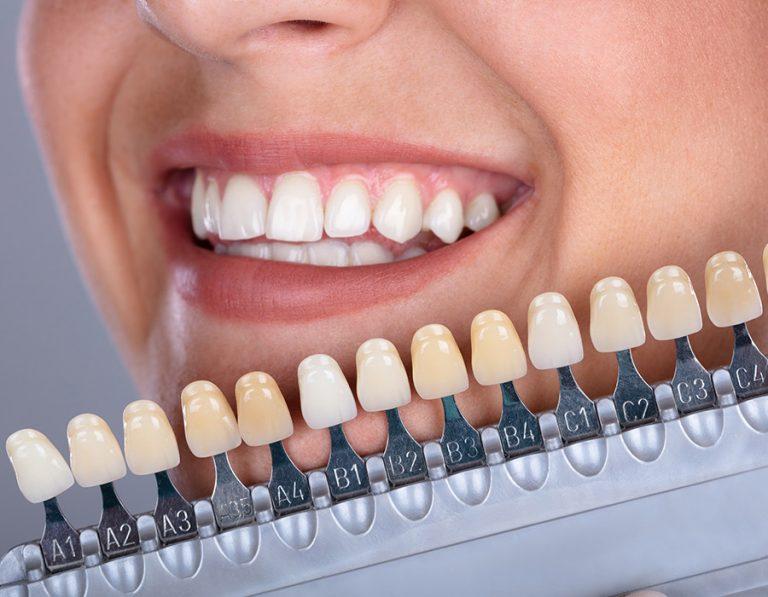 Cosmètica-dental