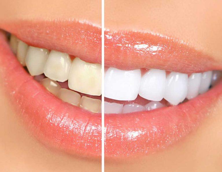 Emblanquiment-dental
